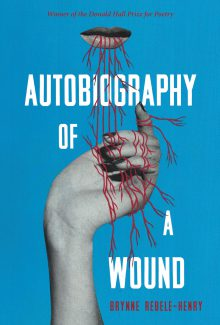 Autobiography of a Wound
