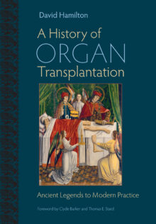 A History of Organ Transplantation
